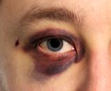 العين السوداء: هل هي مقلقة؟ ولماذا تحدث؟