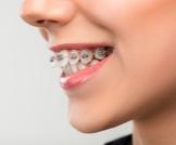 علاج بروز الأسنان الأمامية