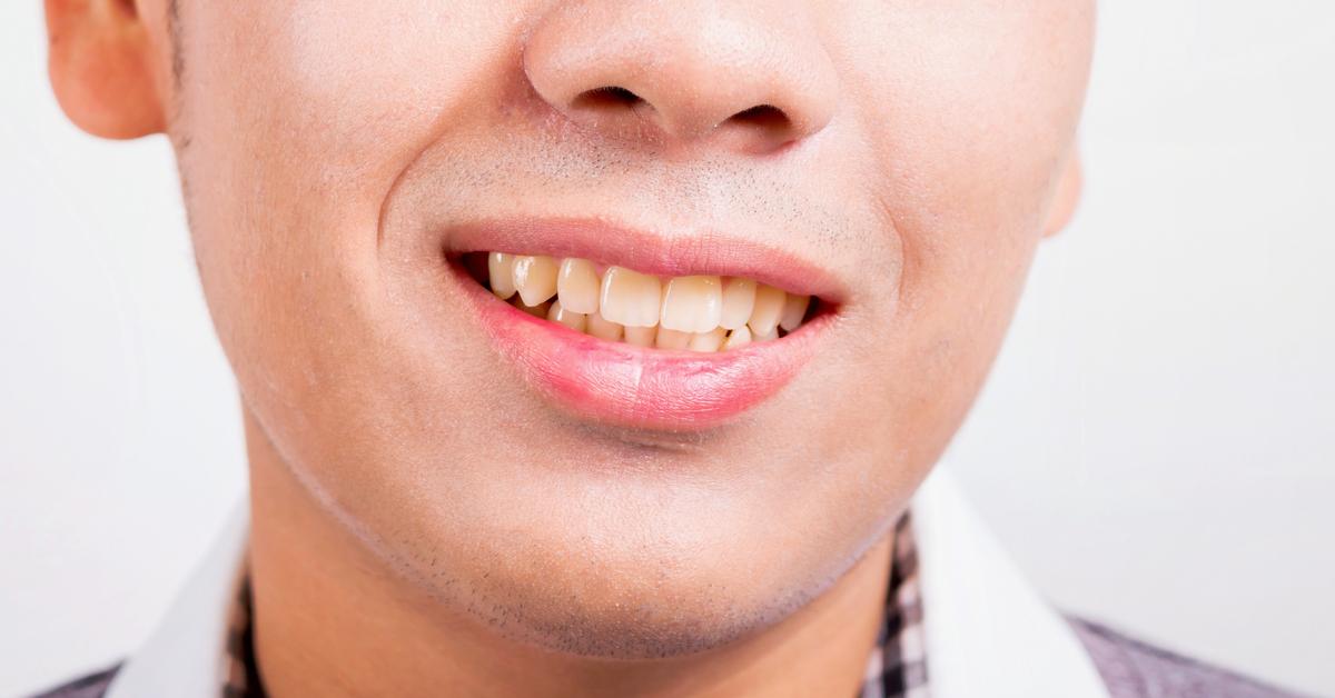 كل ما يهمك حول تصبغات الأسنان ويب طب