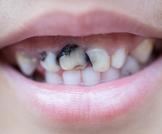 ماذا تعرف عن تسوس الأسنان الأمامية؟