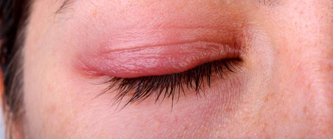 التهاب الجلد حول العين: أسباب وعلاجات مختلفة