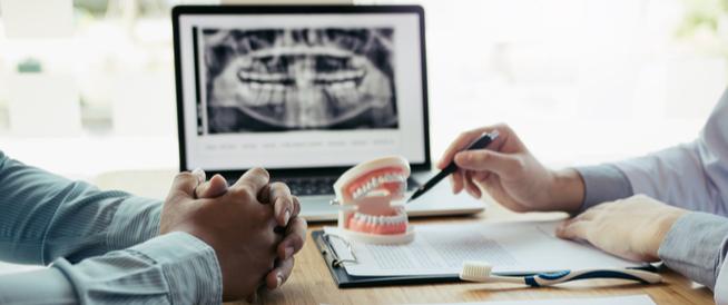 مدة زراعة الأسنان: أبرز المعلومات
