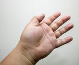 علاج تورم اليدين