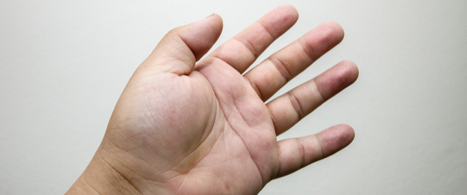 كيف يمكن علاج تورم اليدين