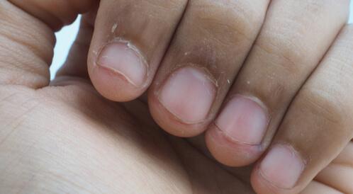 أسباب تشقق الجلد حول الأظافر