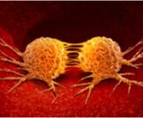 أعراض انتشار السرطان في البطن