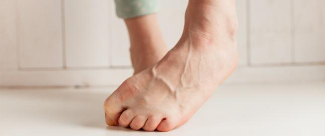 انتفاخ عروق القدم: مشكلة طبية مزعجة