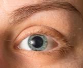 أمراض بؤبؤ العين: معلومات هامة