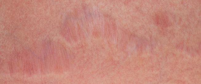 طرق علاج التشققات الحمراء: من الطب والطبيعة