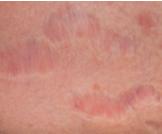 طرق علاج التشققات الحمراء
