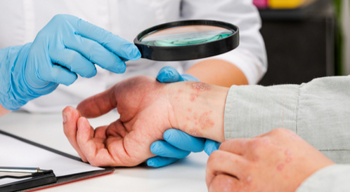 أمراض جلدية نادرة: تعرف عليها