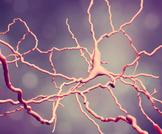 مرض هنتنغتون: مرض نادر يقتل خلايا الدماغ