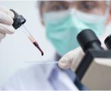 تشخيص الملاريا: تعرف على أبرز الطرق