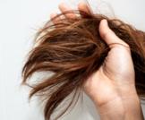 الغدة الدرقية وخشونة الشعر