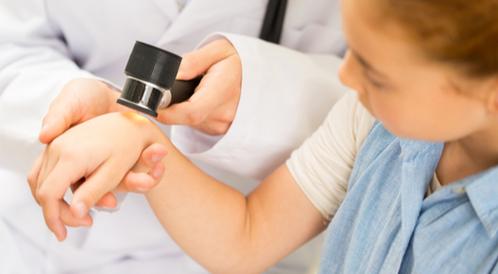 سرطان الجلد عند الأطفال
