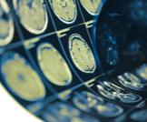 أعراض ارتجاج المخ: تعرف عليها