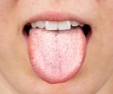 علاج فطريات المعدة واللسان
