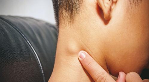 أسباب التهاب الغدد اللمفاوية