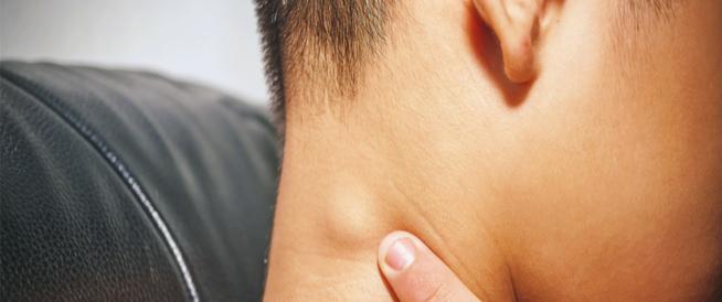أسباب التهاب الغدد اللمفاوية و طرق علاجها
