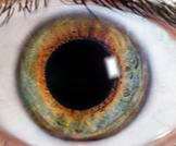 متلازمة ادي: مشكلة صحية قد تصيب العيون