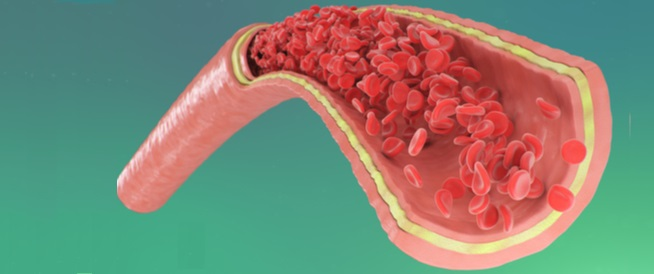 أمراض القلب التاجية: ما هي؟