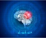 أنواع ارتجاج المخ