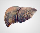 أعراض تليف الكبد المتأخر