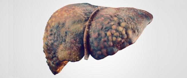 أعراض تليف الكبد المتأخر أسبابه والمضاعفات المحتملة