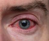علاج احمرار العين الدائم