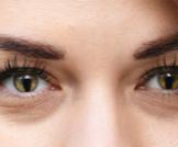الثلامة: عيب خلقي غريب قد يظهر في العيون