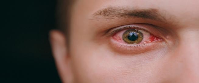 احمرار العين المفاجئ: أسباب وعلاجات