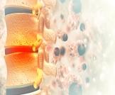 أعراض سرطان العمود الفقري المبكرة
