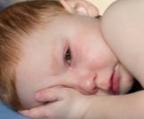 احمرار العين عند الرضع