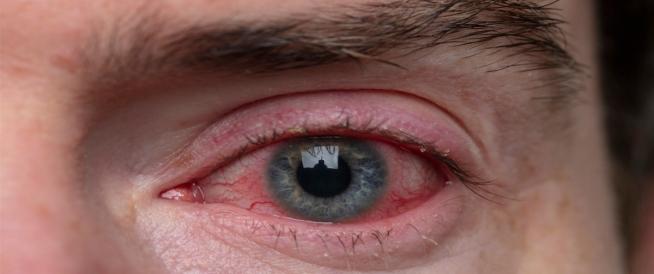 احمرار العين بعد الاستحمام: معلومات تهمك