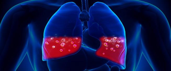 هل الماء في الرئة معدي إليك الإجابة ويب طب