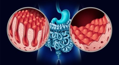 هل مرض السيلياك يسبب السرطان؟