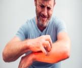 هل الحكة من أعراض الفشل الكلوي؟