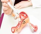 تنظيف الرحم بعد الولادة