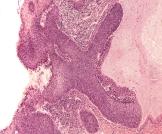 خلايا غير طبيعية في عنق الرحم