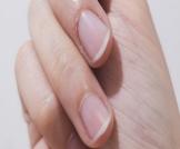 أسباب تقشر الجلد حول الأظافر