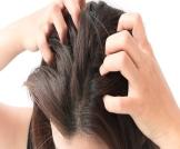 علاج حكة الرأس الشديدة