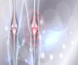 أمراض العظام النادرة