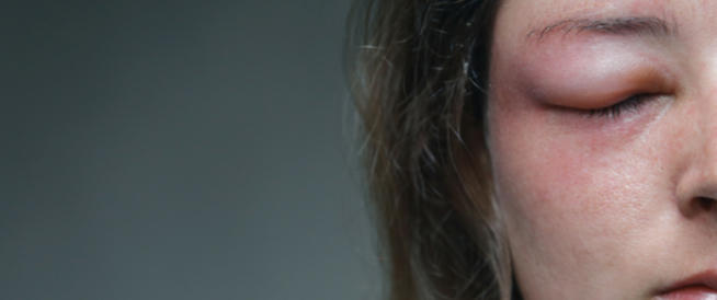 علاج لسعة النحل في العين