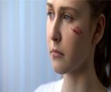 علاج آثار الجروح والخدوش في الوجه