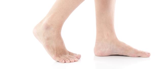 علاج البقع البيضاء على الساق