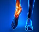 ألم مفصل القدم: أسباب وعلاجات