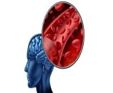 أعراض التهاب الأوعية الدموية في الدماغ