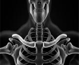 أعراض سرطان عظمة الترقوة