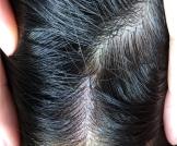 علاج البقع البيضاء في فروة الرأس