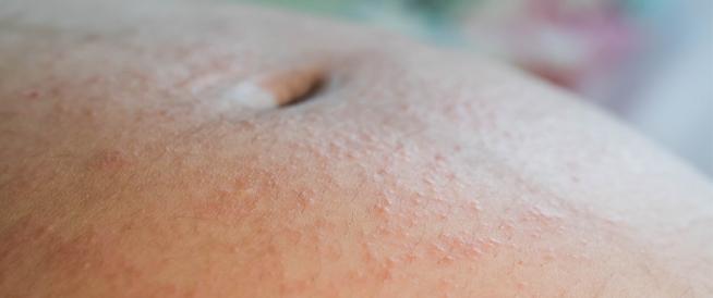 علاج حساسية الجلد للحامل